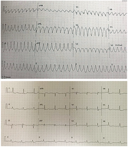 Figure 2. This patient's elevated aVR was associated with three-vessel disease.