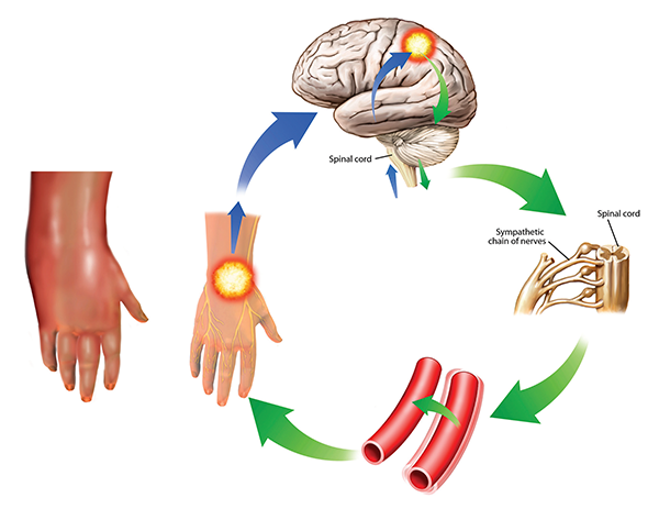 Complex regional pain syndrome This condition is also known as reflex sympathetic dystrophy. The symptoms can worsen over time and spread through the body as they are reinforced in the cycle shown here. The sympathetic response (green) from the brain (upper right) to the pain impulses (blue) cause vessel spasms (lower right) that increase the pain. In this case, the pain and swelling are in the hand, but other areas of the body can also be affected. It is severely painful and treatment is difficult, involving drugs, electrical stimulation, and psychological and neurological forms of therapy.