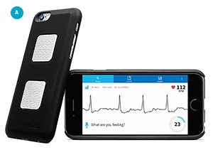 A. AliveCor's Kardia provides an ECG when the user puts fingers from each hand on the back of the integrated mobile phone case