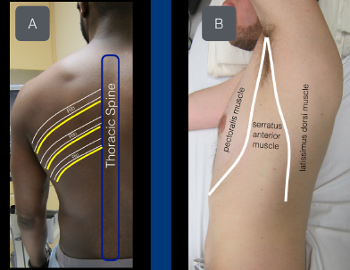 Figure 1A: View of the thoracic intercostal nerves as they exit the spine inferior to the ribs. Figure 1B: The serratus anterior muscle sits between the pectoralis muscle (anterior) and latissimus dorsi muscle (posterior).