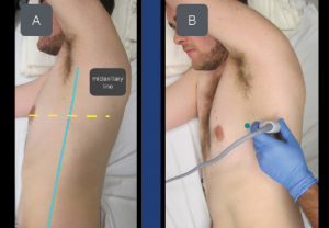 Figure 3A & B: To locate the serratus anterior muscle, place the transducer at the level of the nipple in the midaxillary line. The transducer marker (green dot) should point toward the nipple.