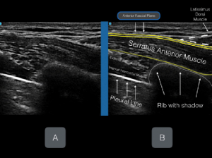 Figures 5A & B: Unlabeled (A) and labeled (B) ultrasound image.