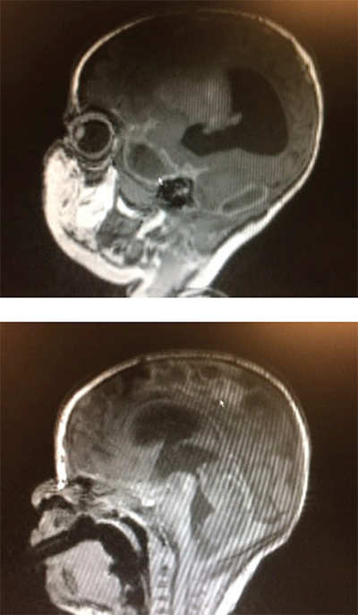 Figure 1 (TOP): Sagittal brain MRI demonstrating a focal area of ischemia (arrow) secondary to meningitis. Figure 2: Sagittal brain MRI. The ring-encasing lesion (arrow) is demonstrative of subdural empyema in the midbrain secondary to bacterial meningitis.