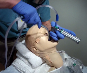 Figure 3: Two suction catheters during laryngoscopy. The operator has stabilized the first catheter in the hypopharynx with the left hand (with same hand holding the laryngoscope). The second catheter is in the operator's right hand, being used for additional suctioning, immediately before placing the tube.