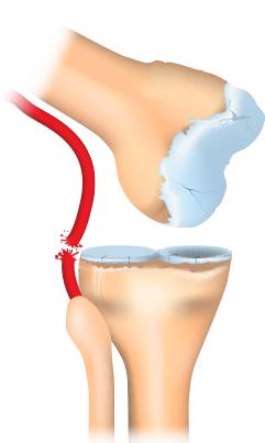 Posterior knee dislocation.
