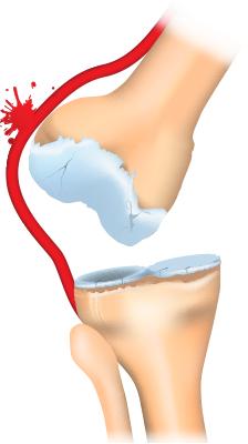 Anterior knee dislocation.