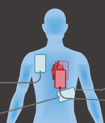 "To perform dual-shock defibrillation, place one set of defibrillator pads in the traditional positions on the chest (blue pads) and attach a second set of pads from a second defibrillator in the anterior-posterior ""sandwich"" position (red pads)."