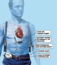 Figure 2: Components of a left ventricular assist device.