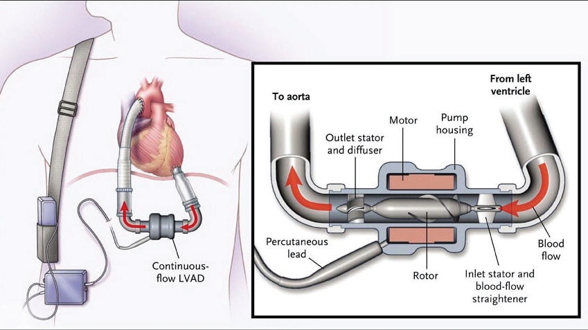 Figure 1: Continuous-flow left ventricular assist device.