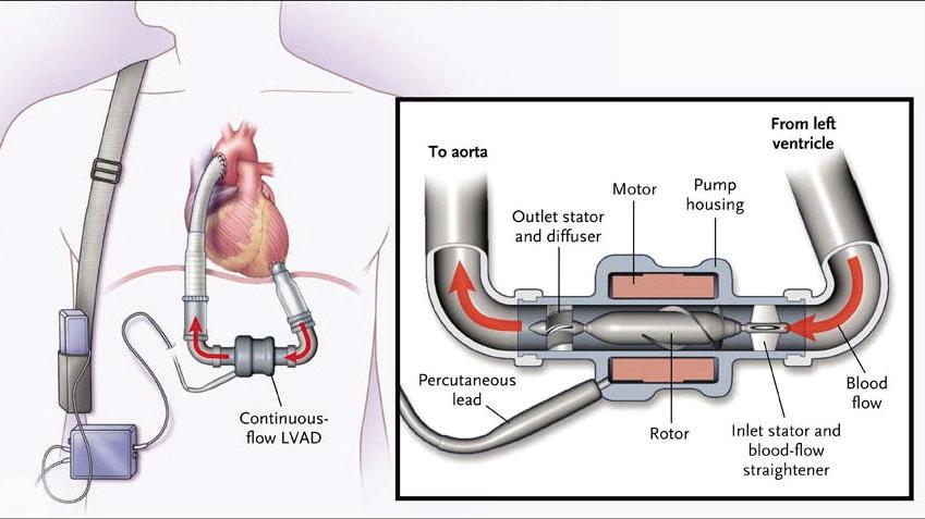 Figure 1: Continuous-flow left ventricular assist device.