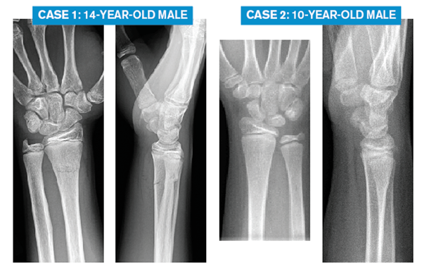 Case 1: 14-year-old male Case 2: 10-year-old male