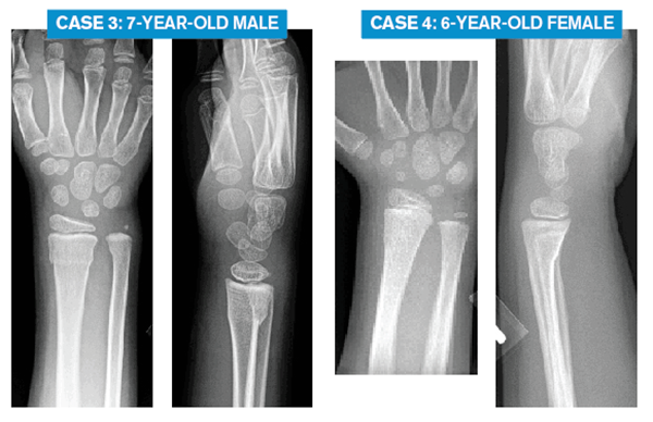 Case 3: 7-year-old male Case 4: 6-year-old FEmale