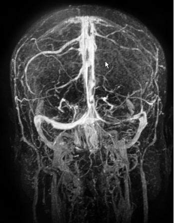 MRI of the 52-year-old female patient with cerebral venous sinus thrombosis.