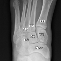 Figure 1: Normal AP weight-bearing radiograph of the left midfoot showing first metatarsal base (M1), second metatarsal (M2), third metatarsal (M3), medial cuneiform (C1), middle cuneiform (C2), lateral cuneiform (C3), and navicular bone (Nav). Note that there is less than 2 mm between C1 and M2 and between M1 and M2.