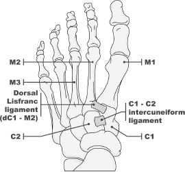 Figure 2: The Lisfranc ligament connects the base of the second metatarsal to the lateral aspect of the medial cuneiform.