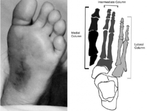 Figure 3: Left: Plantar ecchymosis. Right: Medial, intermediate and lateral column associated with midfoot biomechanics.
