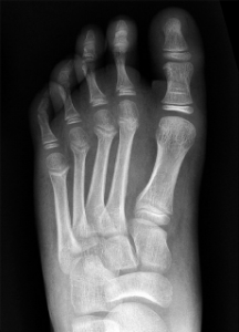 Figure 4A(ABOVE): Initial AP non-weight-bearing radiograph shows normal alignment of the medial and middle columns of an 11-year-old boy after a fall. Credit: RadioGraphics. 2014;34(2):514-531.