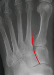 Figure 5: Normal three-column anatomy of Lisfranc complex. A(LEFT) shows the AP view. B(ABOVE) shows the oblique view. C(BELOW) shows the lateral view.