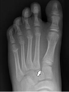 Figure 4b(BELOW): AP weight-bearing radiograph shows widening of the joint seen as a gap of more than 2 mm between C1 and M2 and between M1 and M2 (arrow).