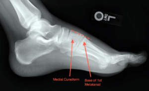 C shows the lateral view.
