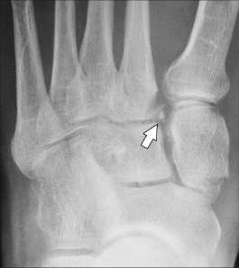 """Figure 6: AP weight-bearing radiograph showing a small chip fracture from medial margin of base of M2, known as the """"fleck sign."""""""