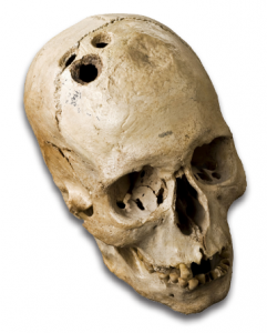 Figure 3. Bronze Age skull from Jericho, Palestine, 2200–2000 BC. The skull shows four separate holes made by trephination that had begun to heal, indicating that the patient survived the procedure.