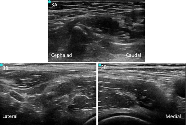 Figure 3. A: Unlabeled preprocedure scan of infrainguinal approach. B: Unlabeled preprocedure scan of suprainguinal approach.