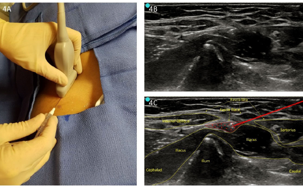 Figure 4. A: Infrainguinal approach (perpendicular to inguinal ligament). B: Unlabeled infrainguinal preprocedure scan. C: Labeled image with infiltration.