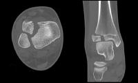 Case 3, Figure 6