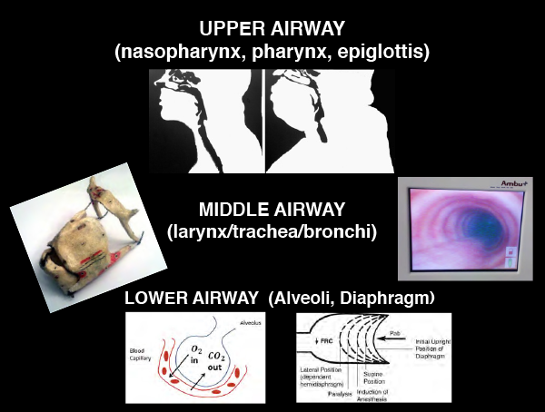 Figure 3: Think of the airway in these three sections.
