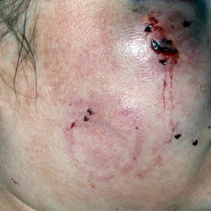 Figure 1: Injuries to the patient's face.