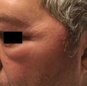 Figure 3: Swelling on the patient's left eye upper and lower eyelids.