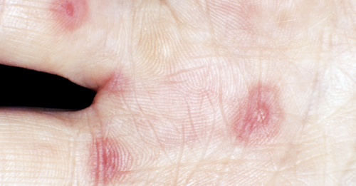 In Pediatric Erythema Multiforme Minor, Is Herpes a Common Cause?