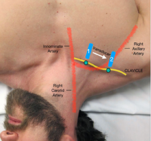 Figure 1: Overview of the initial and final probe position when performing the block. Slide the transducer (blue solid line) from mid-clavicle region to the deltopectoral groove. The probe marker (green dot) should face cephalad. The goal is to visualize the subclavian/axillary artery as it exits below the clavicle.