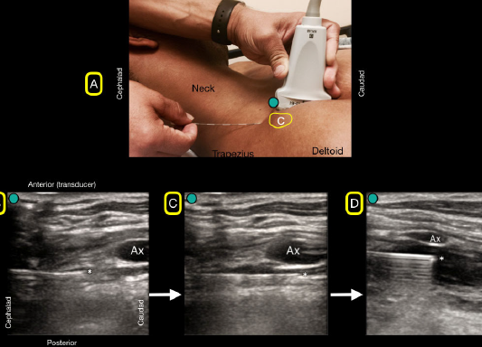 Figure 4A: A flat needle angle will be used to traverse under the clavicle (C). 4B: The bock needle will have to pass under the clavicle and will not be visualized. Note the needle tip as it emerges from under the clavicle and can be easily seen because of its flat angle. 4C: The block needle is advanced until placed just under the axillary artery (Ax). 4D: Anechoic anesthetic fluid is injected under the axillary artery (Ax) for a successful block.