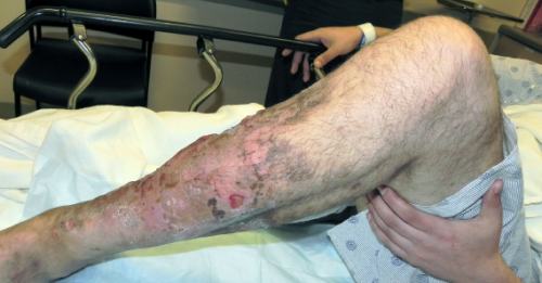 Case Report: Man Presents with Foul-Smelling Leg Wound