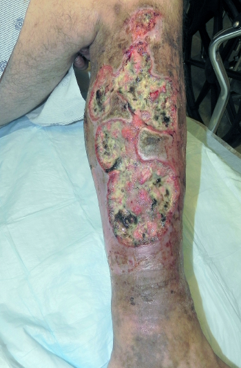 Figure 2 (BELOW): Large ulcers with undermined borders and erythematous edges on the patient's left medial leg.
