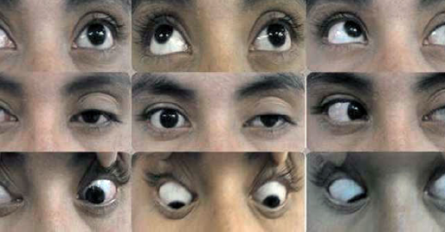 An example of a neuro-ophthalmologic examination in a patient with Tolosa-Hunt syndrome, prior to treatment. Note the left palpebral ptosis, exotropia of the primary look of the left eye, and paresis of the third, fourth, and sixth left cranial nerves.