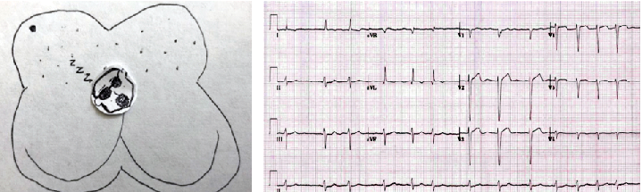 Atrial Fibrillation with Rapid Ventricular Response (RVR) After AV Nodal Blocking Agent