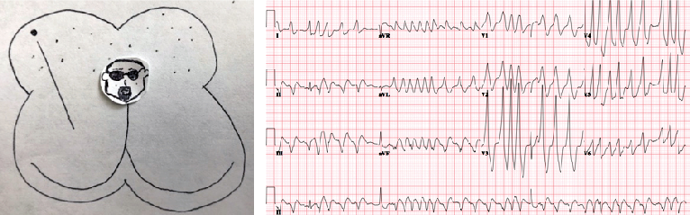 Atrial Fibrillation with RVR in a Patient with WPW