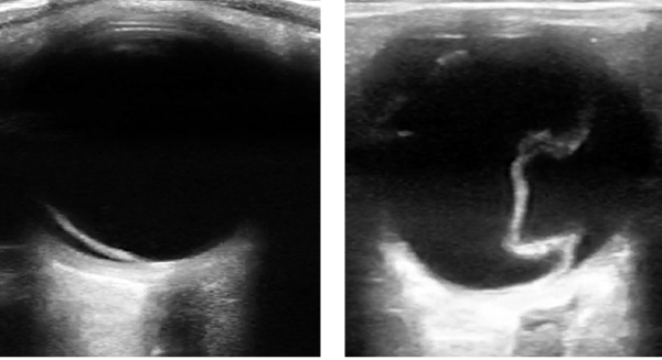 Figure 6 (LEFT): In retinal detachment, the retinal membrane will be lifted off of the posterior or lateral globe and appear as a hyperechoic (bright white) and sometimes serpiginous membrane. Figure 7 (RIGHT): A detached retina may take on a funnel-shaped appearance.