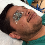 Figure 3: Place a Tegaderm film dressing over the patient's closed eye, gently press out any pockets of air, and apply a copious amount of gel directly over the Tegaderm.