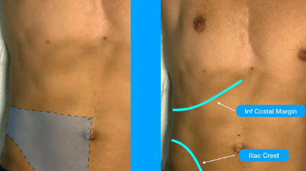 Figure 1A: The lateral ultrasound-guided TAP block will provide innervation to the anterior cutaneous branches of T10 to T12 (approximately the space highlighted). Figure 1B: Surface landmarks that should be palpated (if possible) include the inferior costal margin and the iliac crest. Place the ultrasound transducer between these two landmarks.