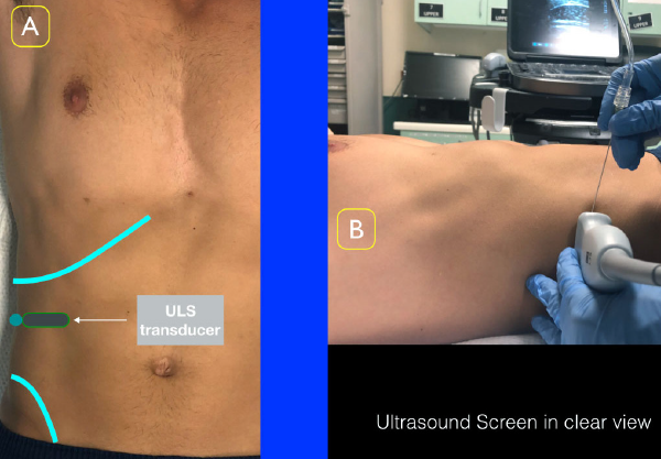 Figure 2A: Place the ultrasound transducer between the inferior costal margin and iliac crest. The probe marker should point lateral/posterior. Figure 2B: Position the ultrasound screen to ensure clear view of the location of injection as well as the ultrasound screen.