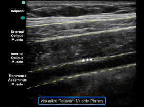 Figure 3: Note the external oblique, internal oblique, and transverse abdominis muscles on the ultrasound screen. The goal is to deposit anesthetic in the potential space just above the transverse abdominis muscle and just below the internal oblique muscle.