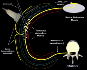 Figure 4: A schematic drawing of the ultrasound-guided TAP block. Note that anesthetic fluid should track in the plane between the internal oblique and transverse abdominis muscles.