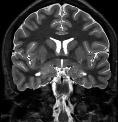 A T2 coronal MRI of a patient with limbic encephalitis, displaying right amygdala enlargement and hyperintensity. Acta Neurol Scand. 2017;135(1):134-141. Reprinted with permission.