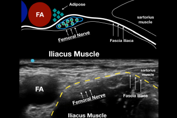 Figure 1: A. Drawing of the relevant sonoanatomy when performing an ultrasound-guided femoral nerve block. Note that the fascia iliaca keeps the femoral nerve right next to the iliacus muscle. B. Ultrasound image of the same anatomy. The fascia iliaca (yellow dotted line) is the key structure to recognize when performing the block.