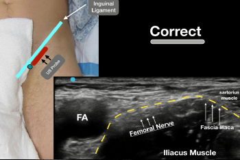 Figure 2: Place the ultrasound probe (with the probe marker facing to the patient's right/green circle) just under the inguinal ligament so that the relevant anatomy is clearly visualized.