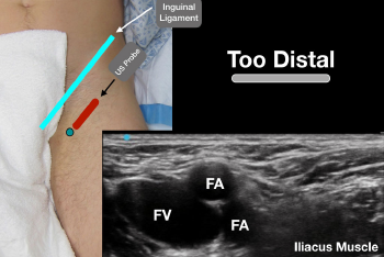 Figure 4: Error 1: The ultrasound probe is too distal in the thigh. The femoral artery has split into the deep and superficial femoral arteries, making visualization of the fascia iliaca and iliacus muscle difficult.